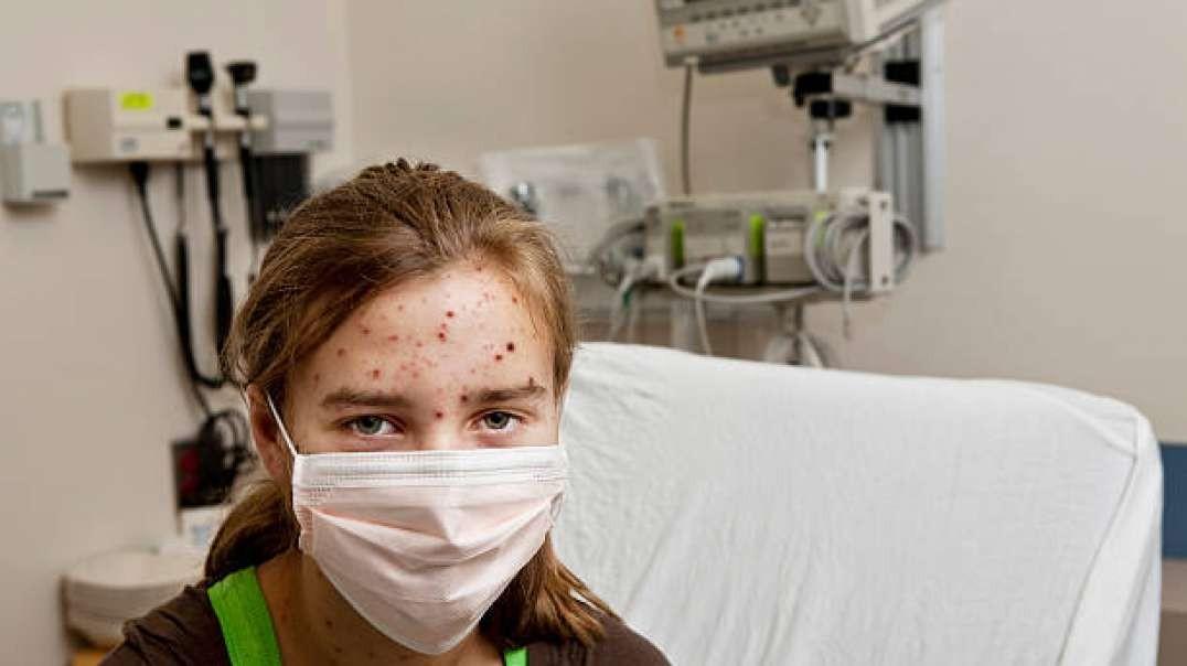 Viruela - Epidemias | El Regreso del Monstruo Desfigurador